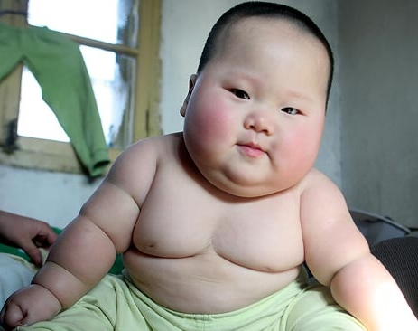 bebe-obese